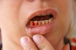 prevention-of-gum-disease