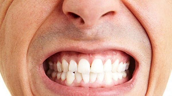 bruxism-clenched-teeth