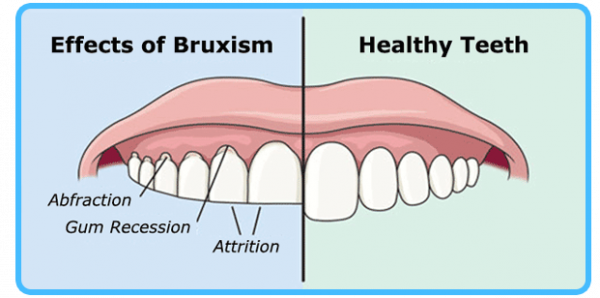 effects-of-bruxism-diagram