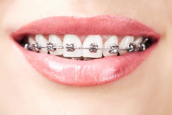 pain-from-wearing-braces