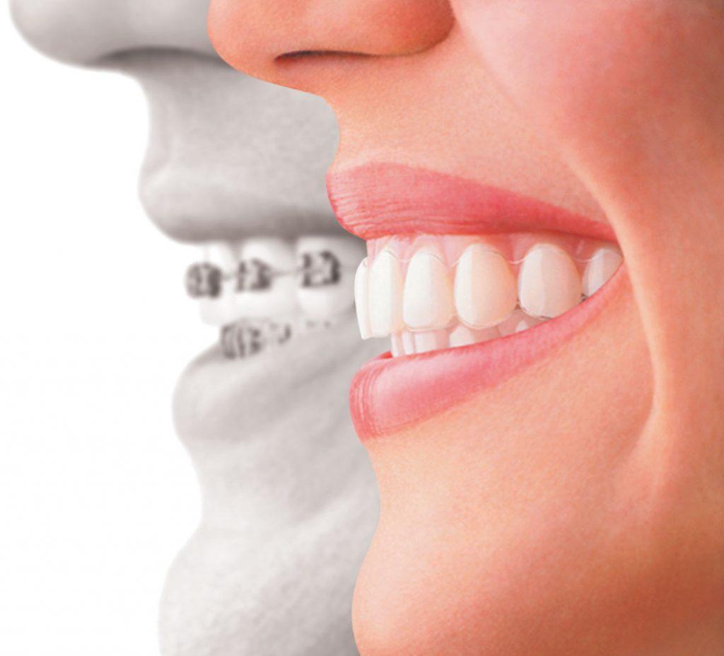 the rise of orthodontics