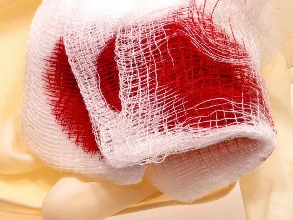 dental-implant-bleeding