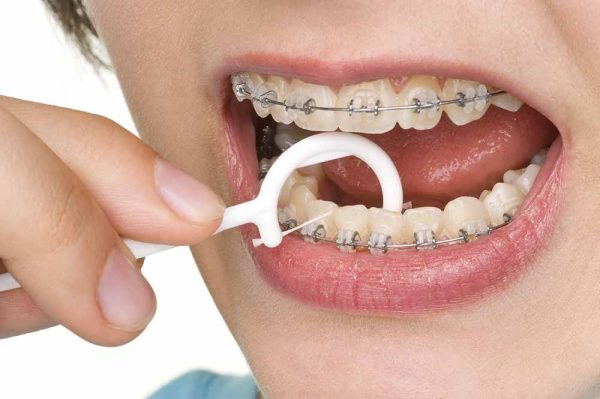 caring for braces