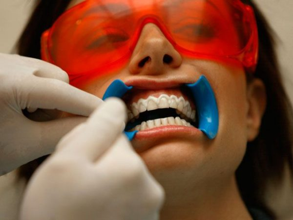 teeth-whitening-at-the-dentist