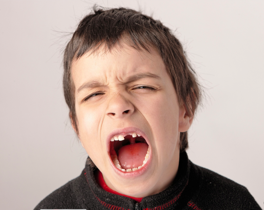 Tooth Loss Kids