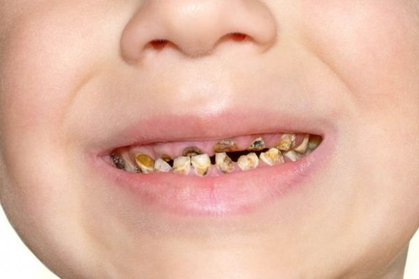 1 in 10 children don't know how to brush their teeth properly
