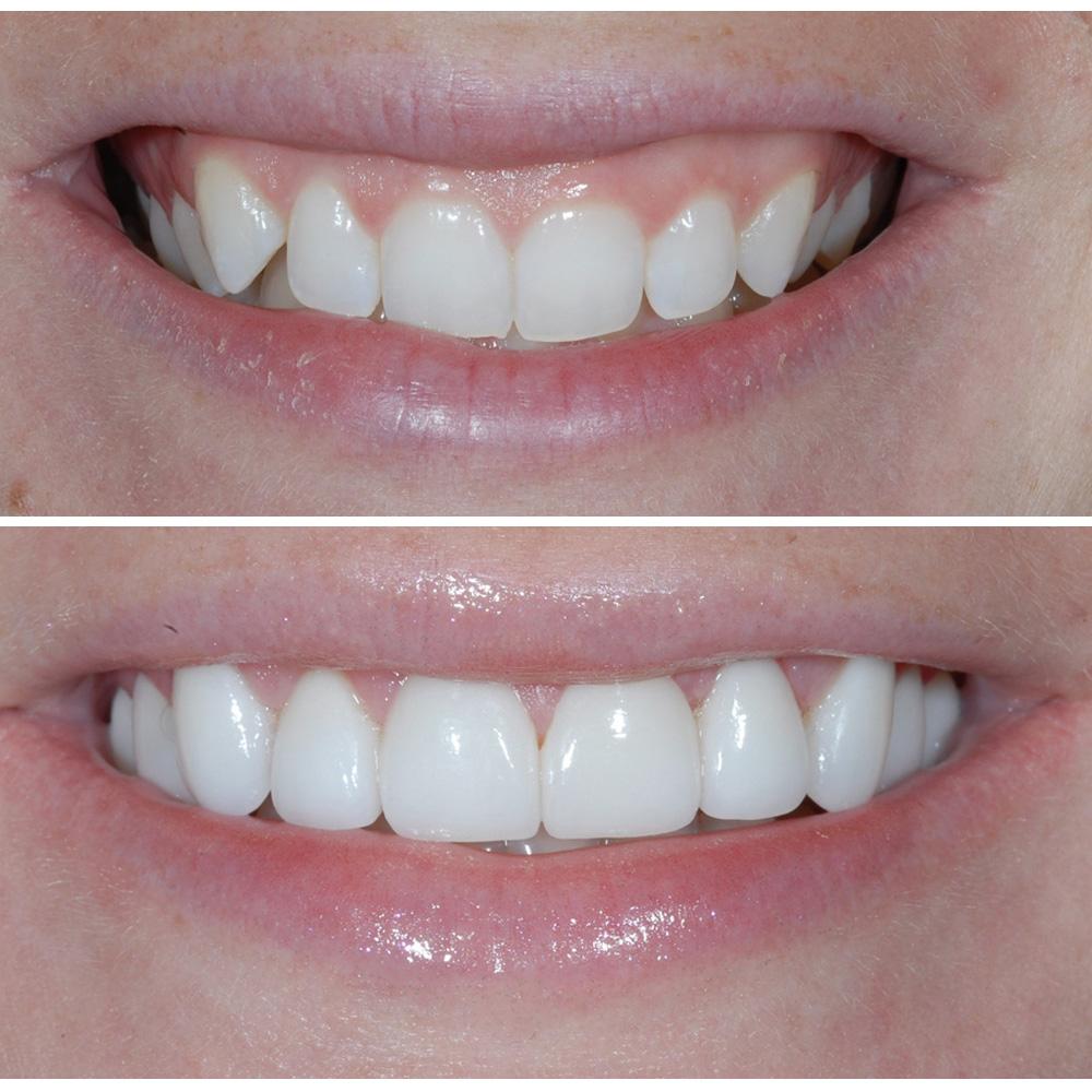gum lift, gum, gums, teeth, smile,