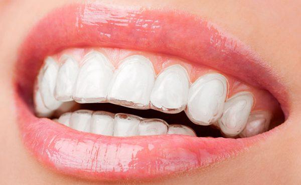 invisalign, invisible brace, braces, orthodontic, smile