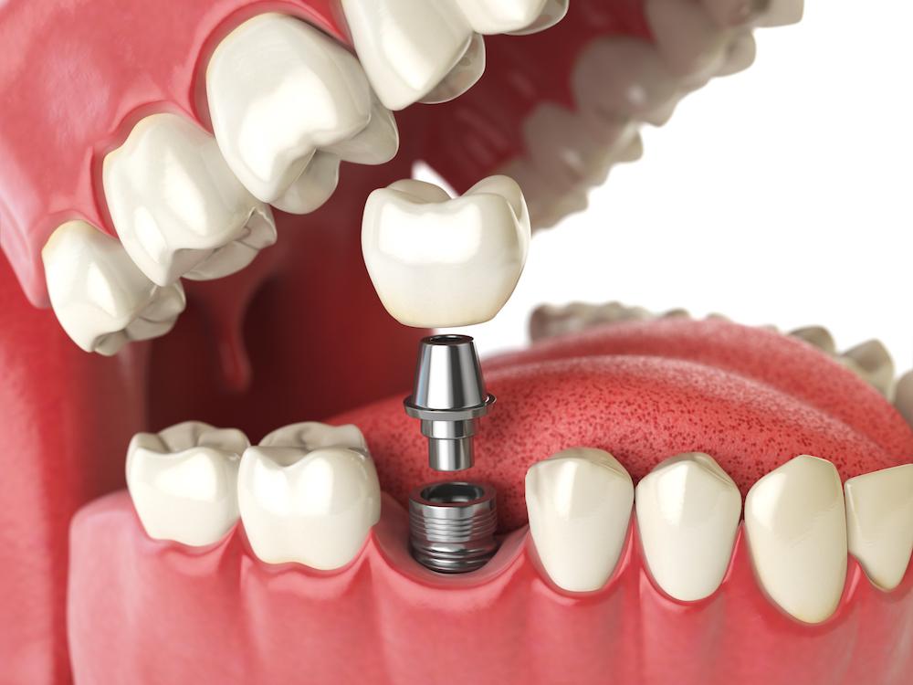 implants, dentistry, discount, teeth