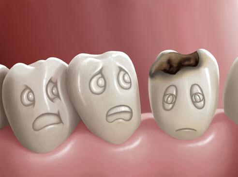 dental filling, fillings, dental care, oral health