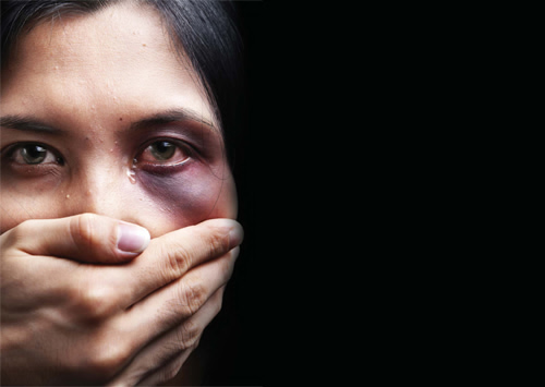domestic abuse, can spot domestic abuse, dentistry, dental health, oral health
