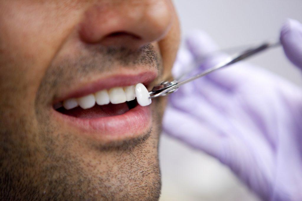 cosmetic dentistry, cosmetic, dental health, aligners, teeth whitening, veneers