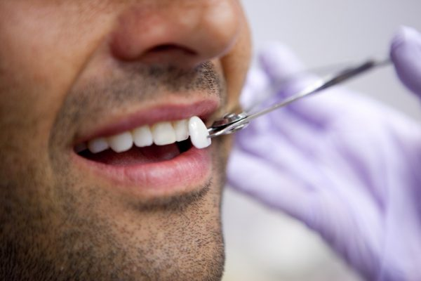 veneers-cosmetic-dentistry
