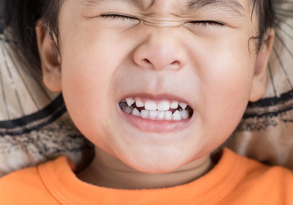 teeth grinding in children, bruxism in children, bruxism in kids