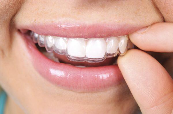 Appledore Dental Clinic 4119 AT 600x395