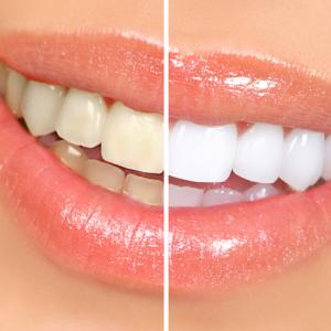 Brite Dental Edinburgh A21176 2435 300x300