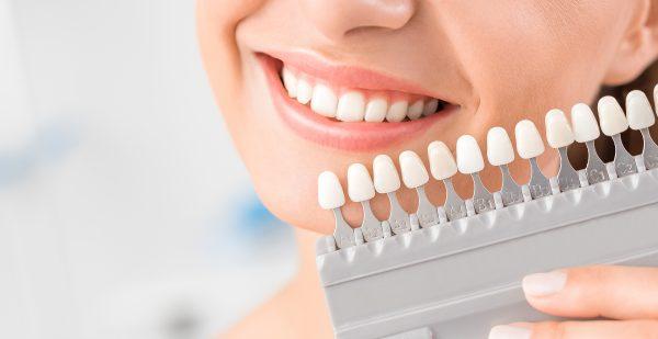 teeth-whitening-shades