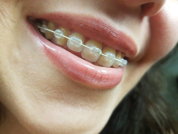 braces-pain