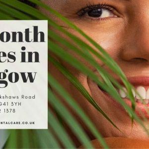 six month smiles glasgow 1 300x300